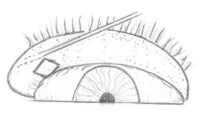 FIG. 3 Eversione palpebrale inferiore. L'eversione della palpebra inferiore viene ottenuta aiutandosi con una sonda di Bowman inserita nel canalicolo inferiore.