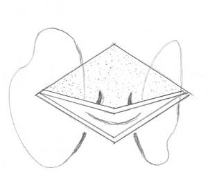 FIG. 5 Ancoraggio dei muscoli retrattori. Un filo in vycril 5-0 doppiamente armato viene fatto passare attraverso il complesso dei muscoli retrattori. Entrambi gli aghi sono poi passati attraverso il bordo superiore della incisione: medialmente attraverso la congiuntiva e lateralmente attraverso il bordo inferiore del tarso.