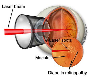 retinopatia diabetica cura