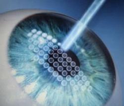 laser femtosecondi