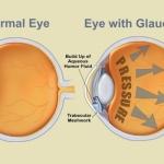 Una nuova associazione di farmaci per la cura del glaucoma