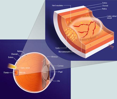 edema maculare