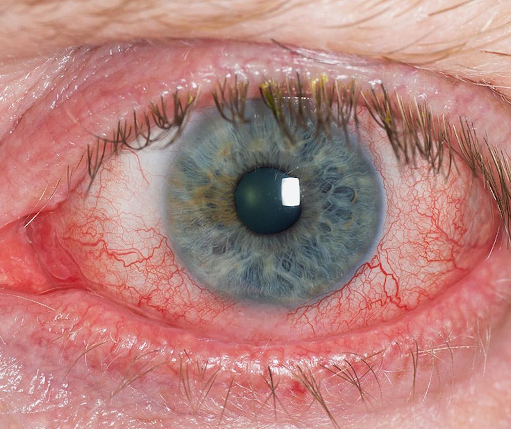 Un nuovo approccio terapeutico per l'occhio secco e la blefarite: la luce pulsata