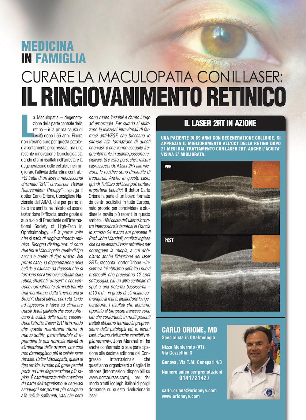 Curare la maculopatia conillaser: il ringiovanimento retinico